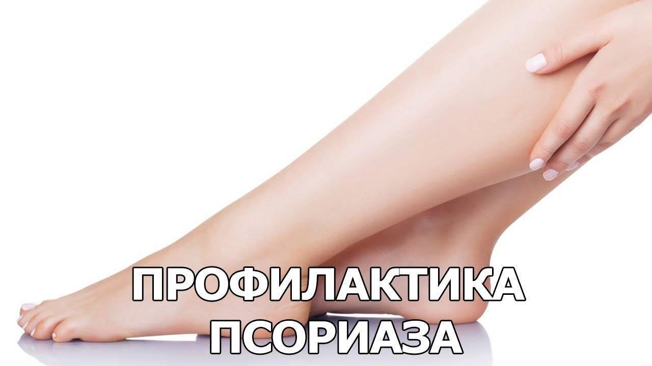 Формы псориаза