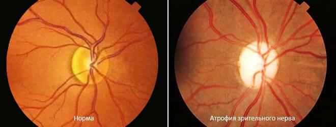 нисходящая частичная атрофия зрительного нерва