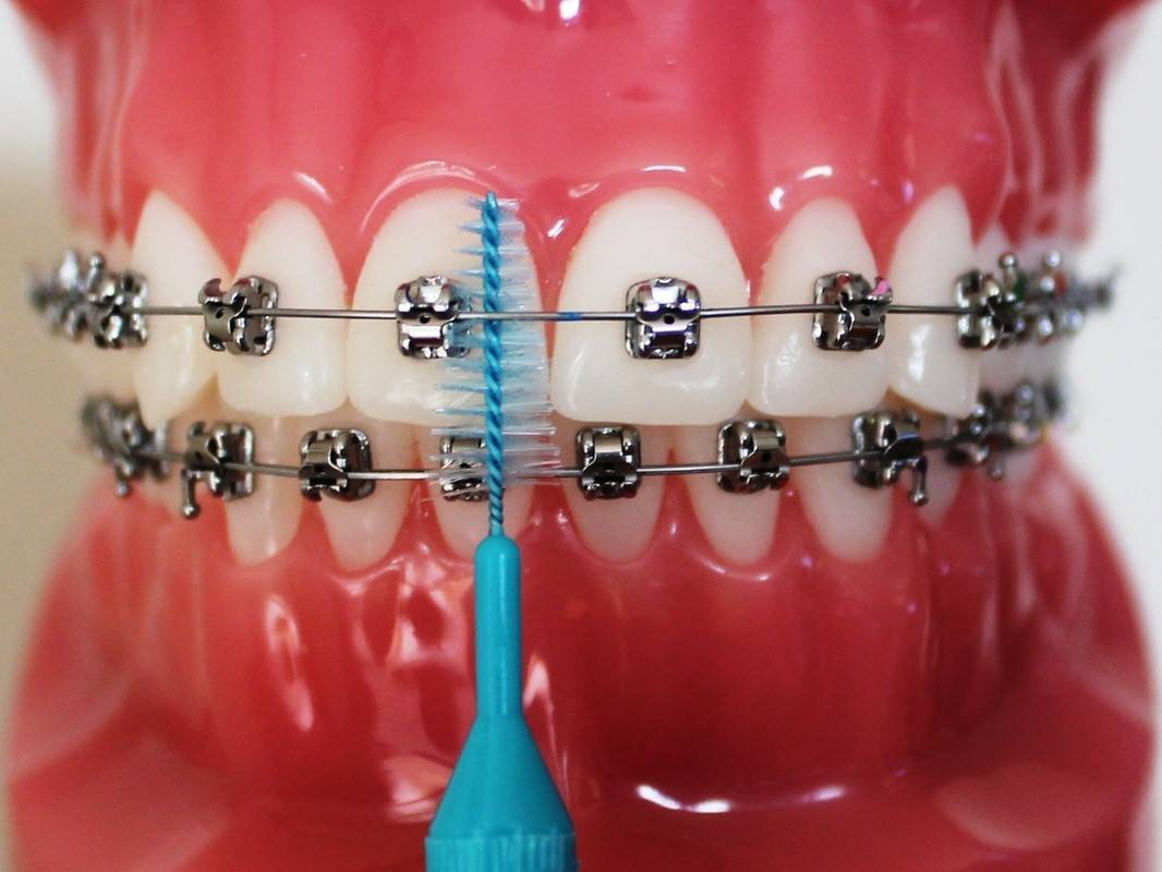 Как правильно чистить зубы с брекетами электрической зубной щеткой, чистка нитью: можно ли после отбелить у стоматолога?