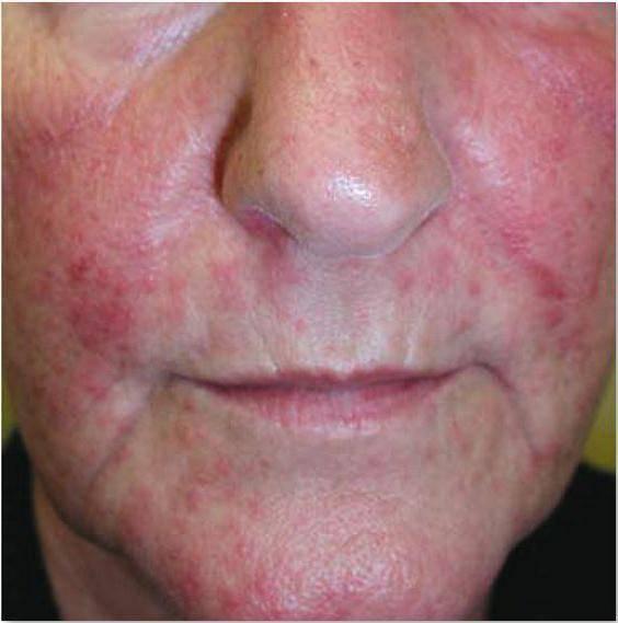 Проходит ли аллергический дерматит сам по себе