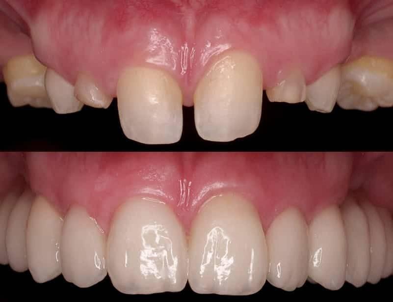 Реставрация зубов— эстетическое восстановление зубного ряда