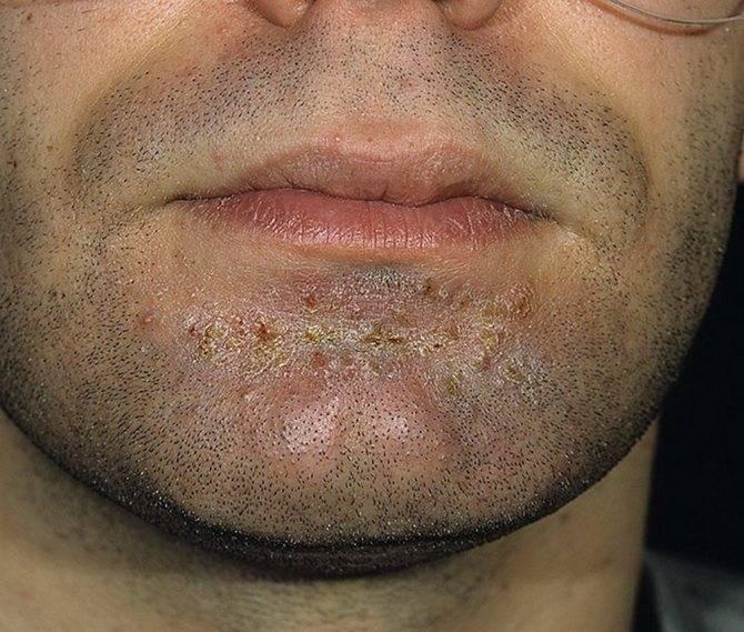 стафилококковый дерматит у детей