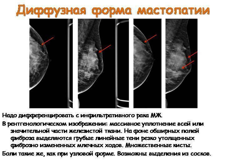 Фиброзно-кистозная мастопатия: лечение народными средствами