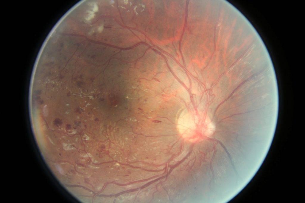 функция сетчатки глаза