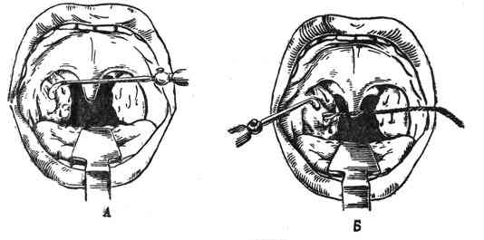 Как проводится санация миндалин?