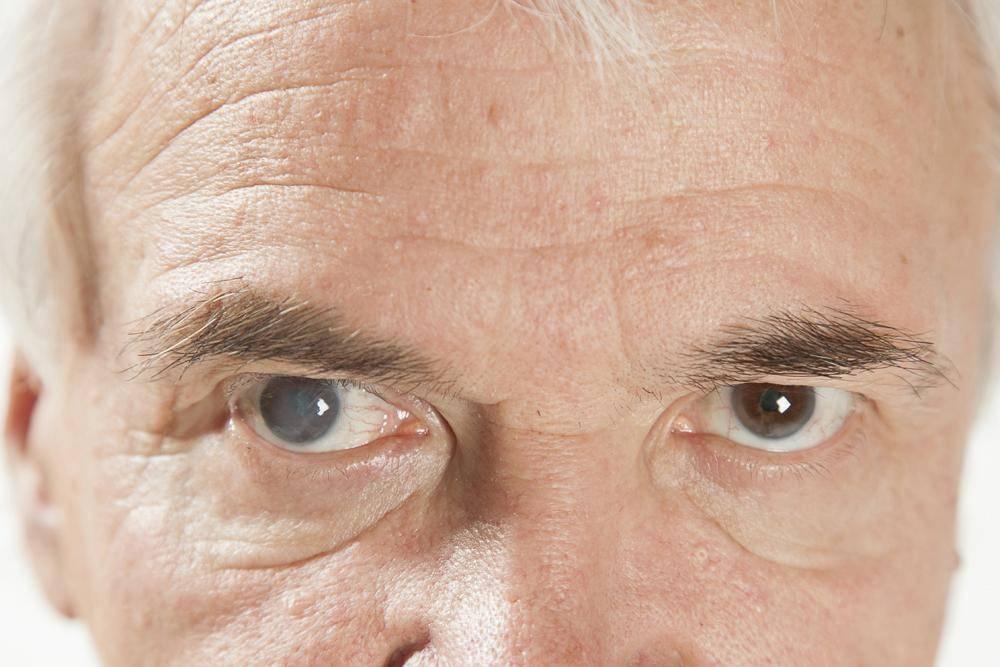 Энуклеация глаза – почему и каким образом осуществляется