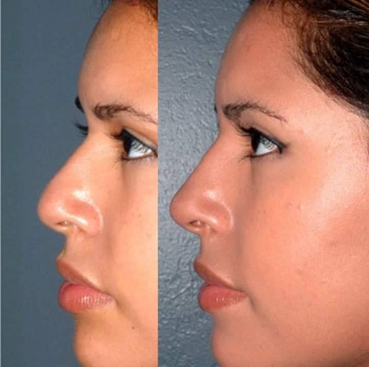 изменение формы носа без операции