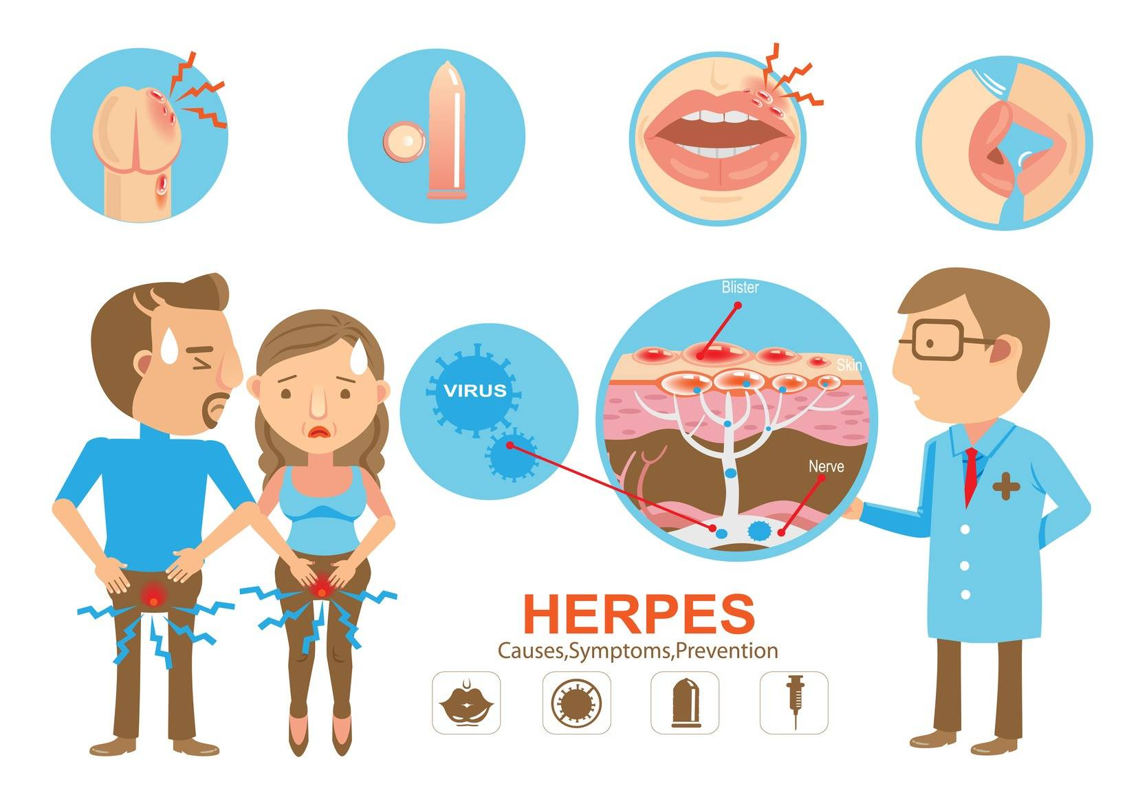 профилактика герпеса перед родами