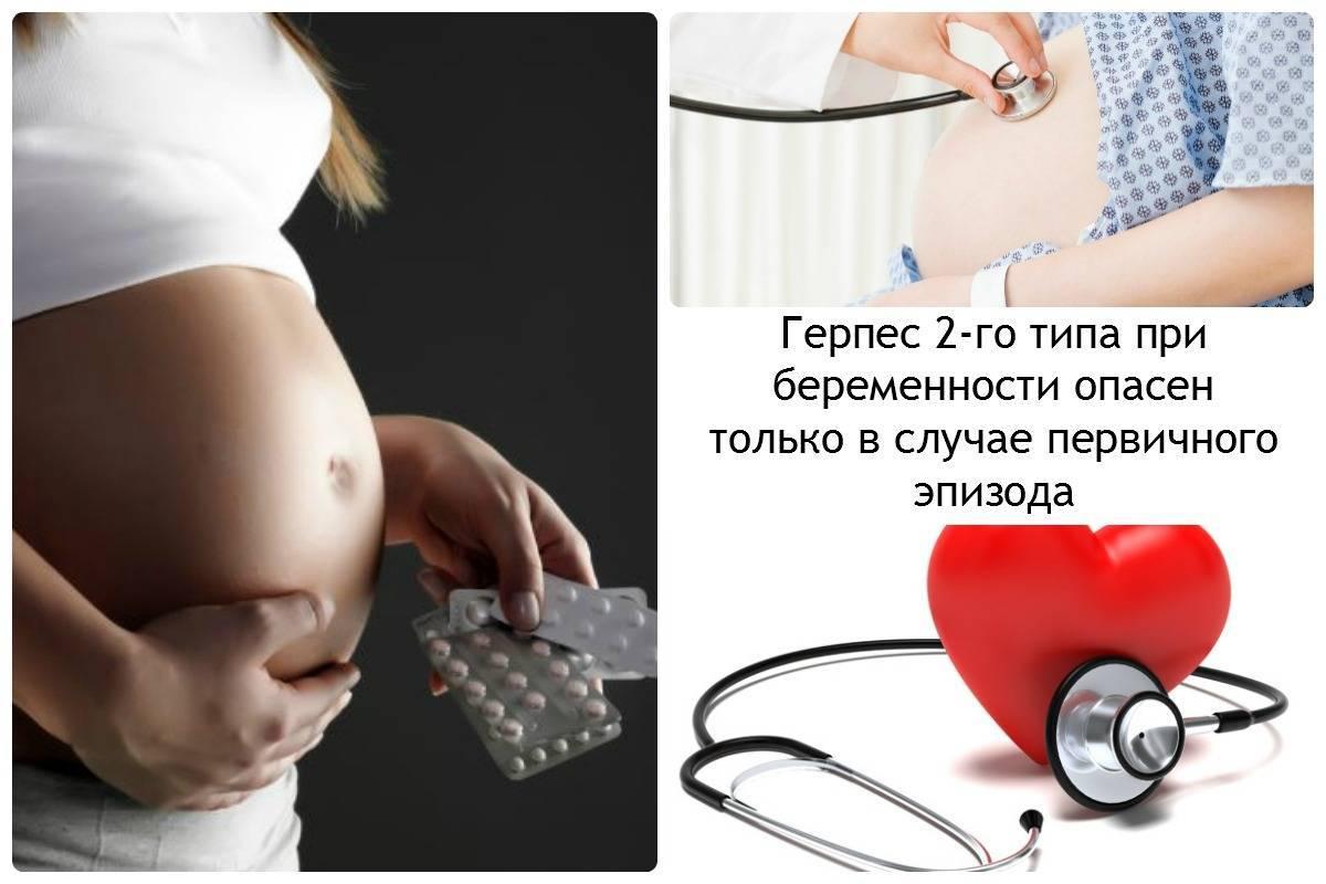 герпес при беременности 2 триместр чем лечить