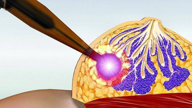 эстрогенозависимые опухоли молочной железы
