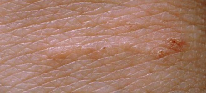 Чесоточный зудень - строение паразита, пути заражение, симптомы, диагностика и как лечить у детей или взрослых
