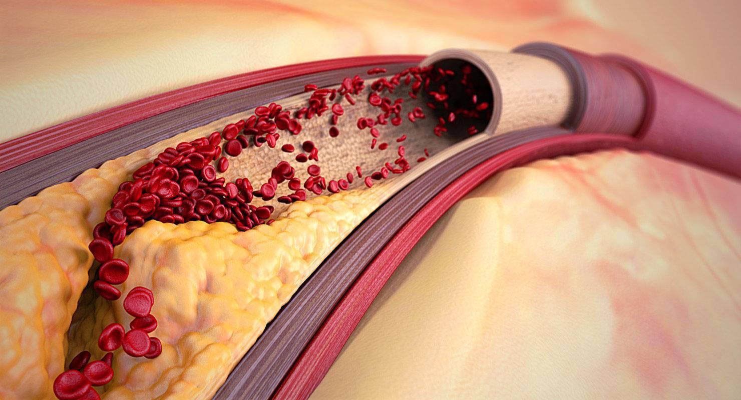 генерализованный атеросклероз причина смерти