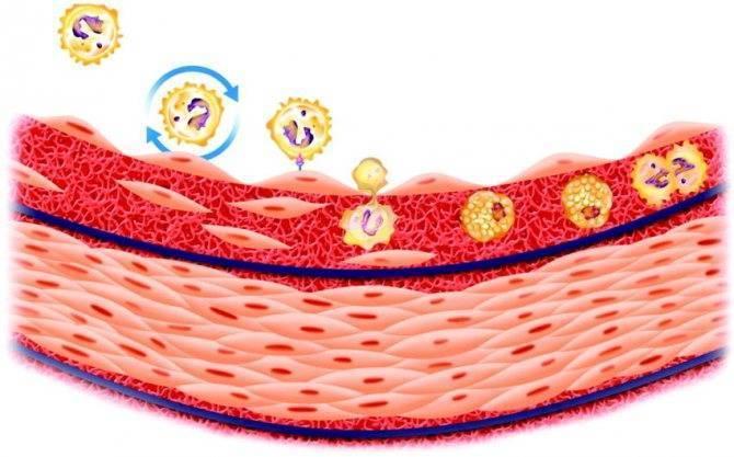 Операции по удалению холестериновых бляшек