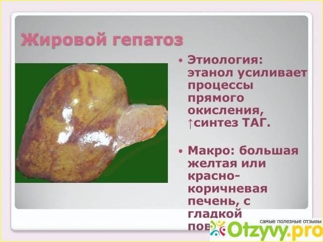 Диффузные изменения печени по типу жирового гепатоза: причины, признаки, лечение