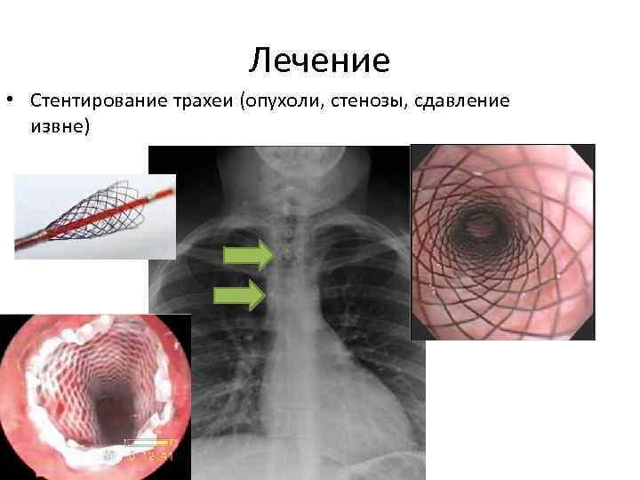 Злокачественные опухоли трахеи : причины заболевания, основные симптомы, лечение и профилактика