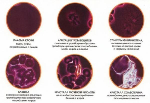 кровь на антитела к гельминтам