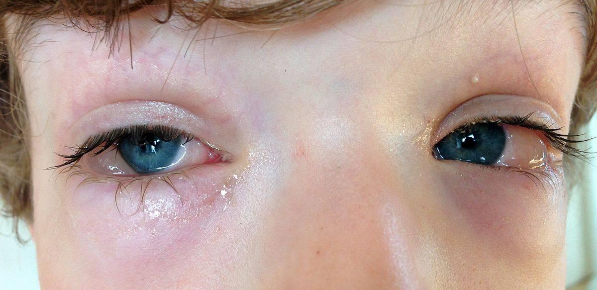 Гной в глазах после бани причины лечение