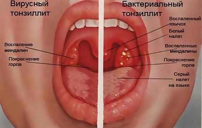 Лечение воспаленных миндалин у взрослых