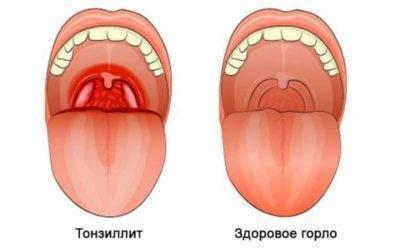 красные точки на горле у ребенка