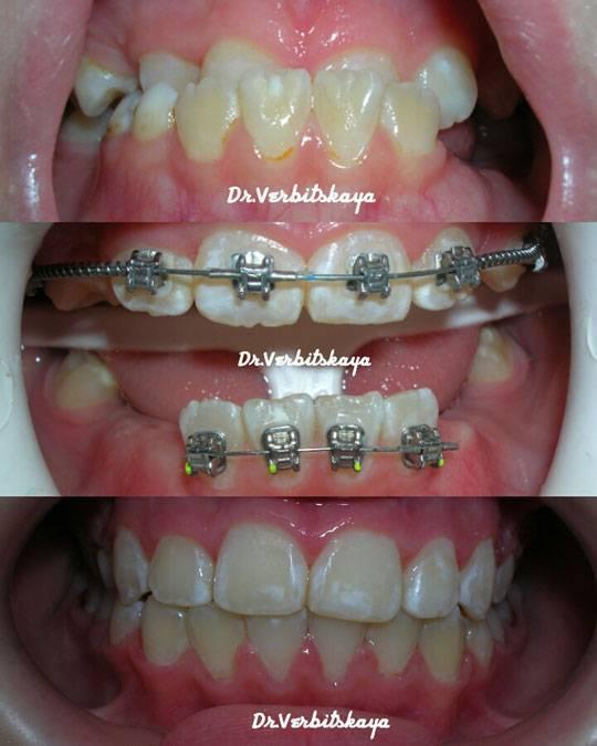 Зачем нужны брекеты на зубы?