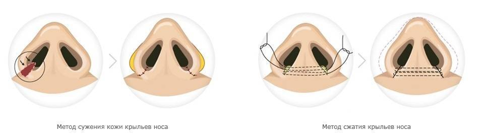 Какие виды форм носа существуют и что можно сказать о характере их обладателя