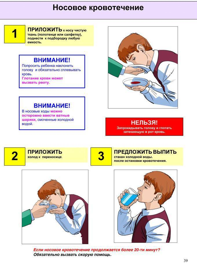 неотложная помощь при носовом кровотечении у детей