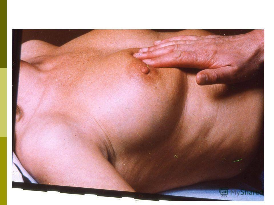 Техника самообследования молочных желез, осмотр ареол и сосков