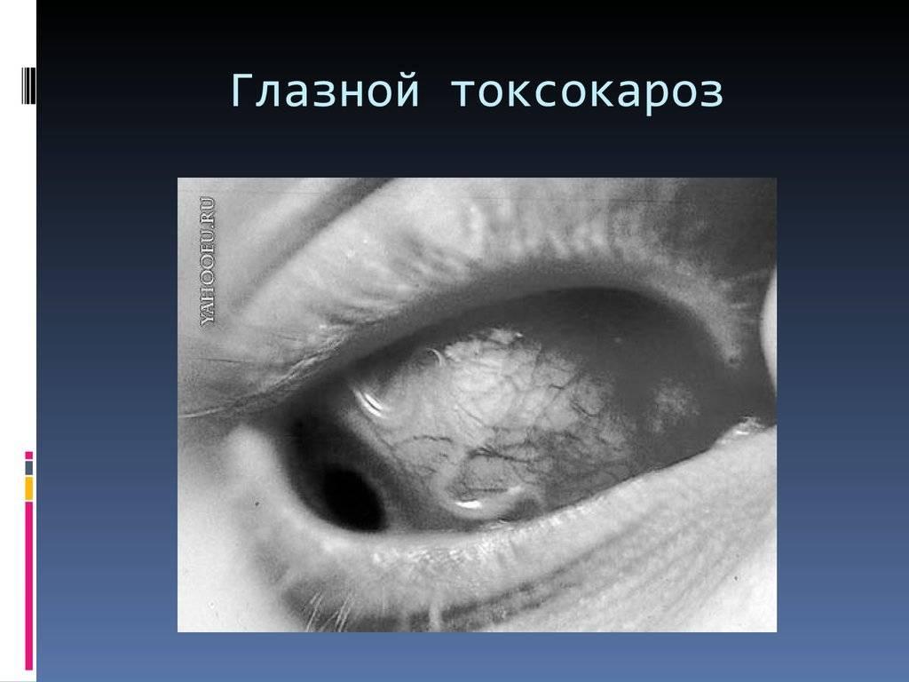 Токсокароз у детей - симптомы и тактика лечения