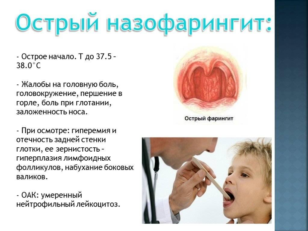 Назофарингит у детей — симптомы и лечение