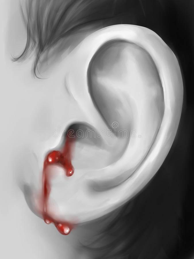 Кровь из ушей – возможные причины и правила первой помощи