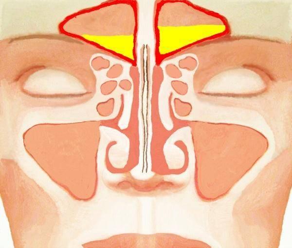болезни носа и придаточных пазух