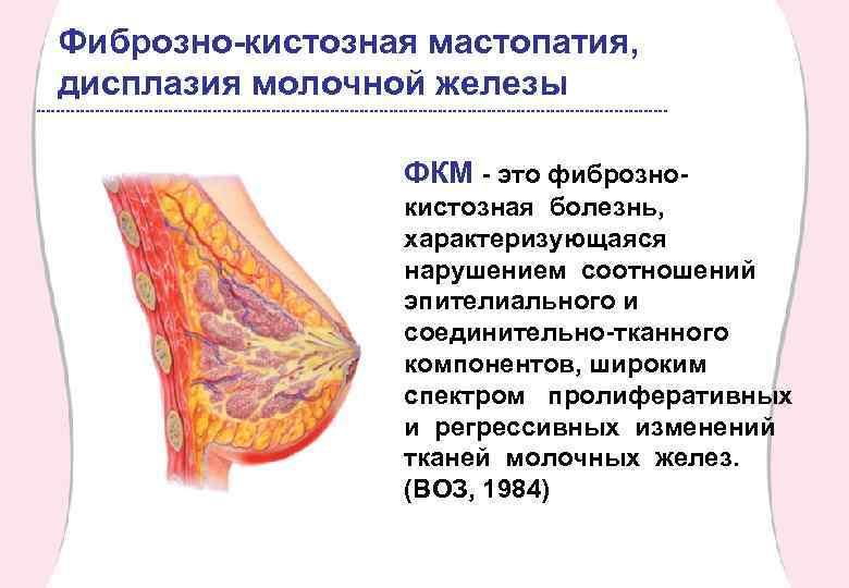 Дисгормональная мастопатия молочных желез: причины, симптомы, лечение