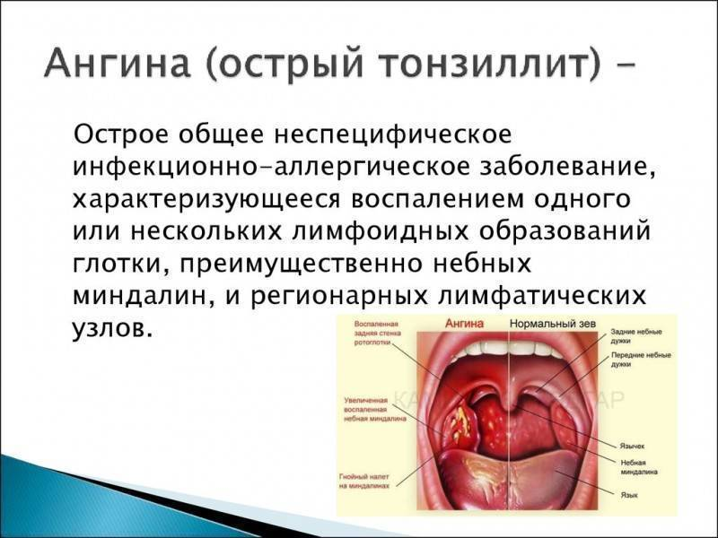 вирусная ангина чем лечить