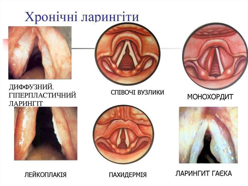 Воспаление голосовых связок: симптомы и лечение