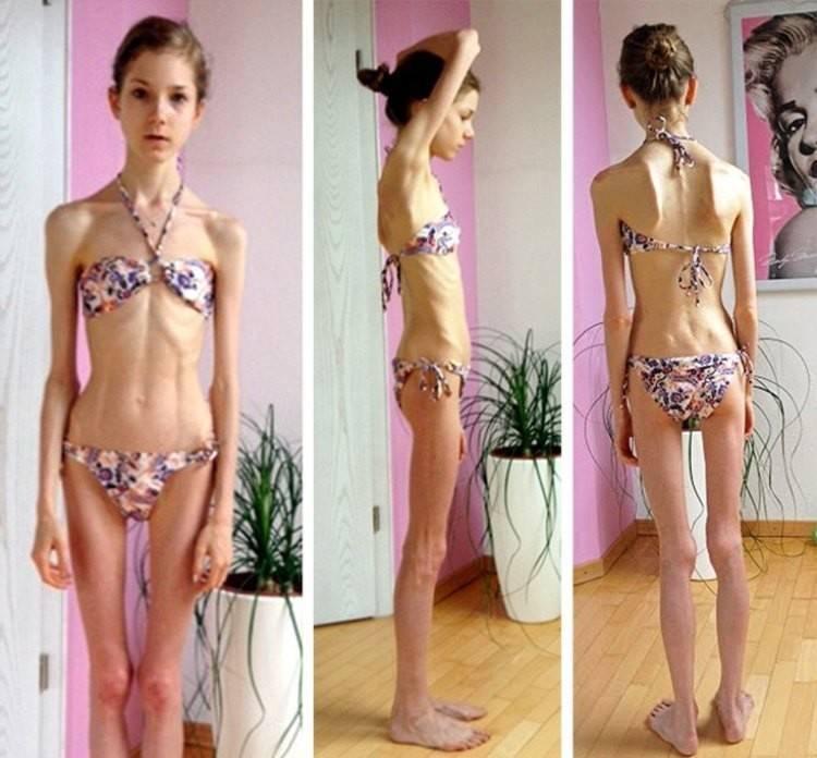 как заработать анорексию