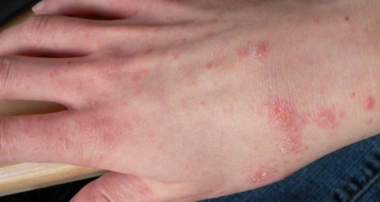 Лечение лучевого дерматита
