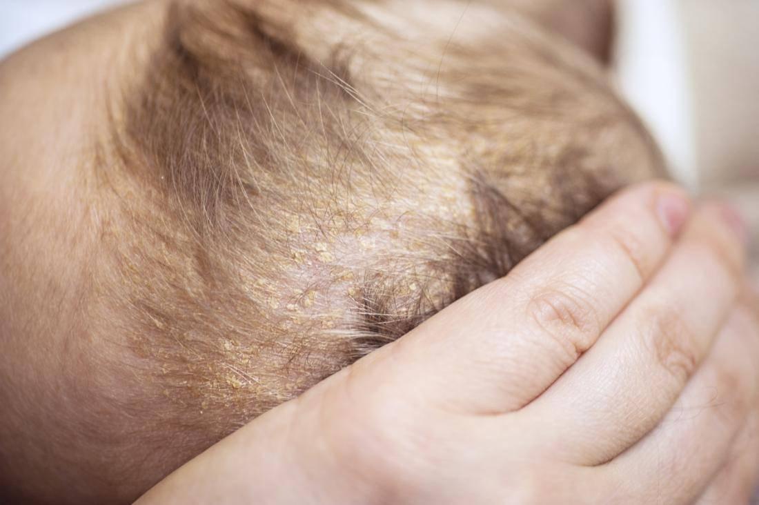 себорейный дерматит головы у ребенка лечение