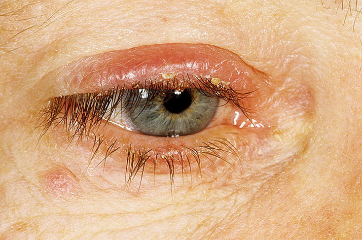 Воспаление верхнего века глаза: признаки и как его лечить, чем лучше, лечение болезни в нижней глазной области