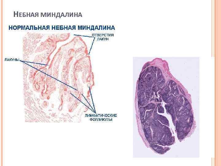 Небные миндалины: классификация заболеваний и методы лечения