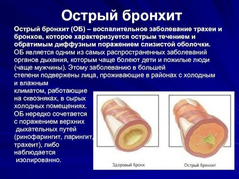 Острый трахеит