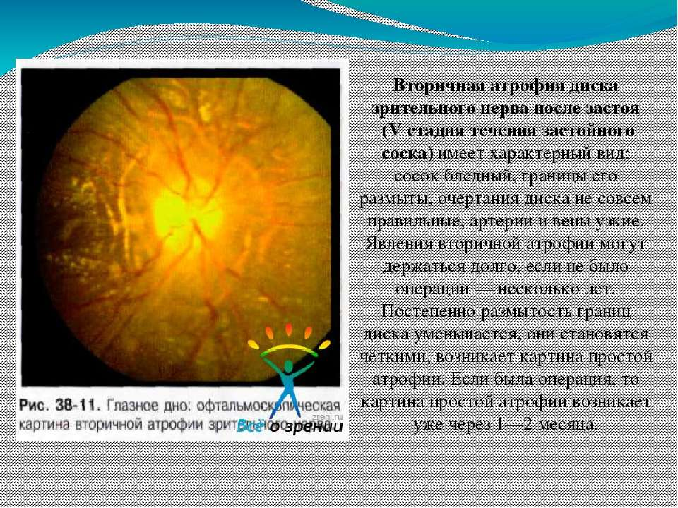 Отёк диска зрительного нерва — википедия. что такое отёк диска зрительного нерва