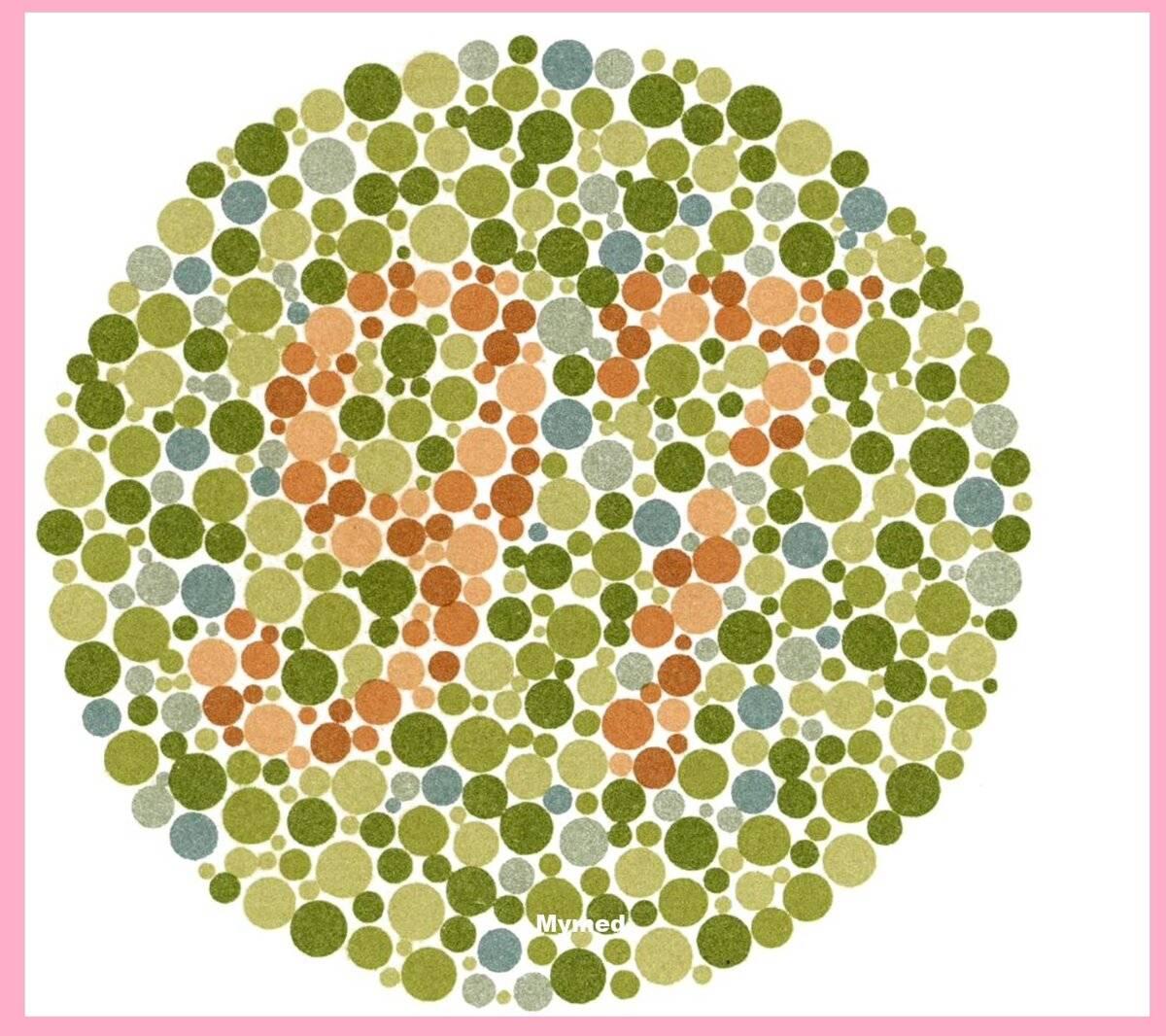 Выявление аномалий: как проводится проверка зрения на цветовосприятие для водителей?
