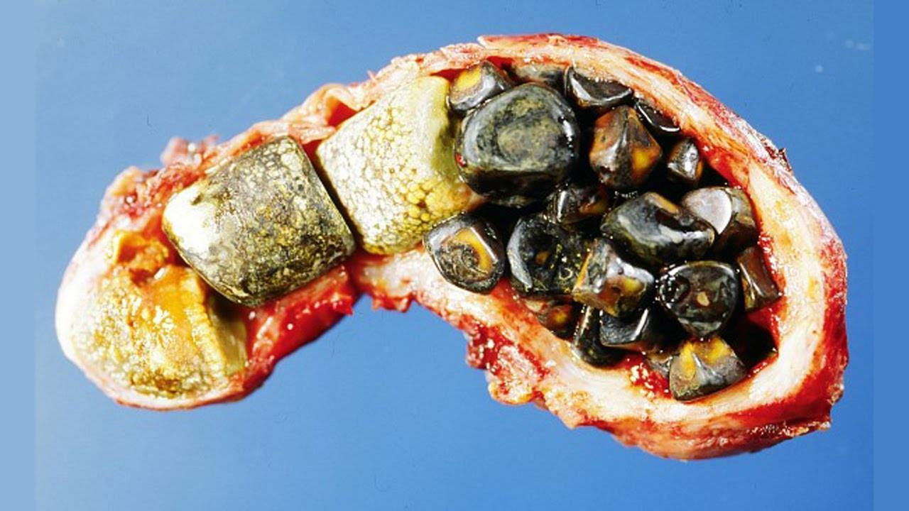 Размеры желчного пузыря – норма и патология