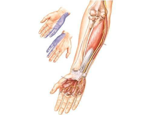 невропатия локтевого нерва лечение лечение