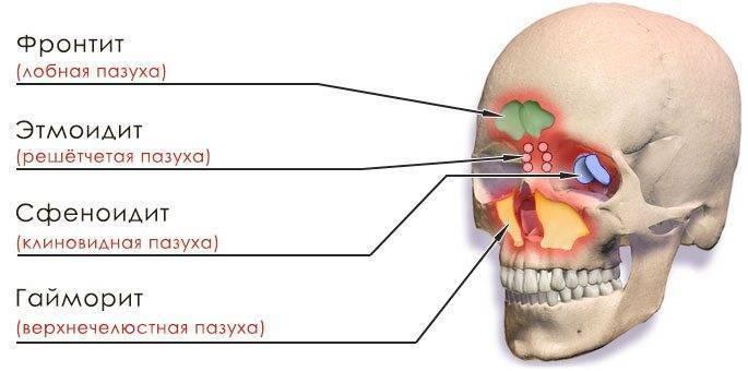 синусит или гайморит