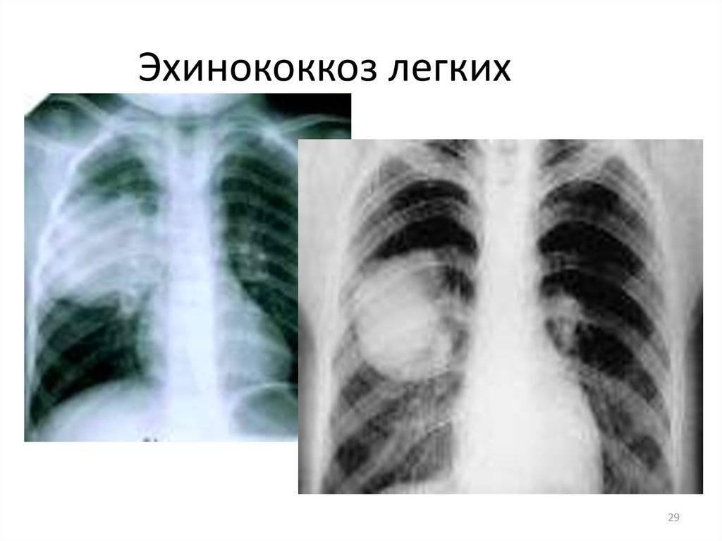 Эхинококкоз легких - описание болезни