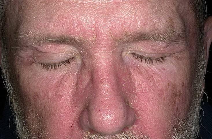 Себорейный дерматит: причины, диагностика, лечение | портал 1nep.ru
