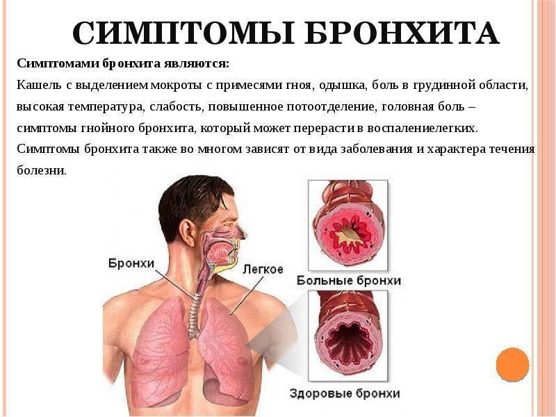 кашель с гноем
