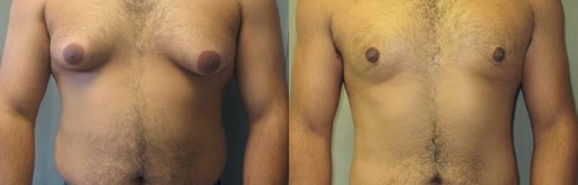 Некрасивая гинекомастия у мужчин: операция как эффективный метод избавления от проблемы