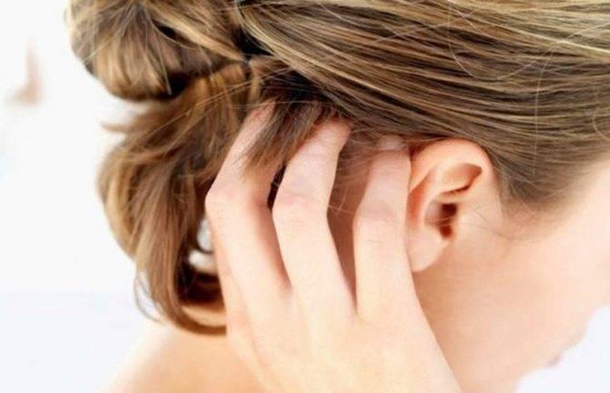 Методы лечения демодекоза волосистой части головы